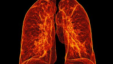 Photo of In Astounding Test, Scientists Revive Damaged Lungs for Transplant