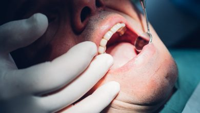 Photo of Dentists Are Seeing an Epidemic of Cracked Teeth. What's Going On?